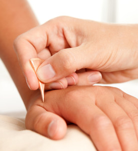 acupuncture for kids needle-free acupuncture